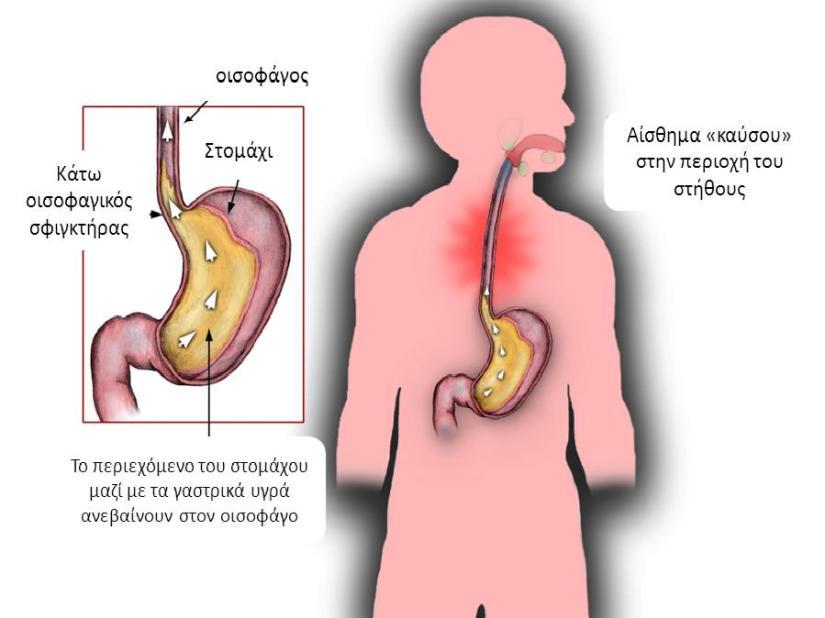 sophageal reflux